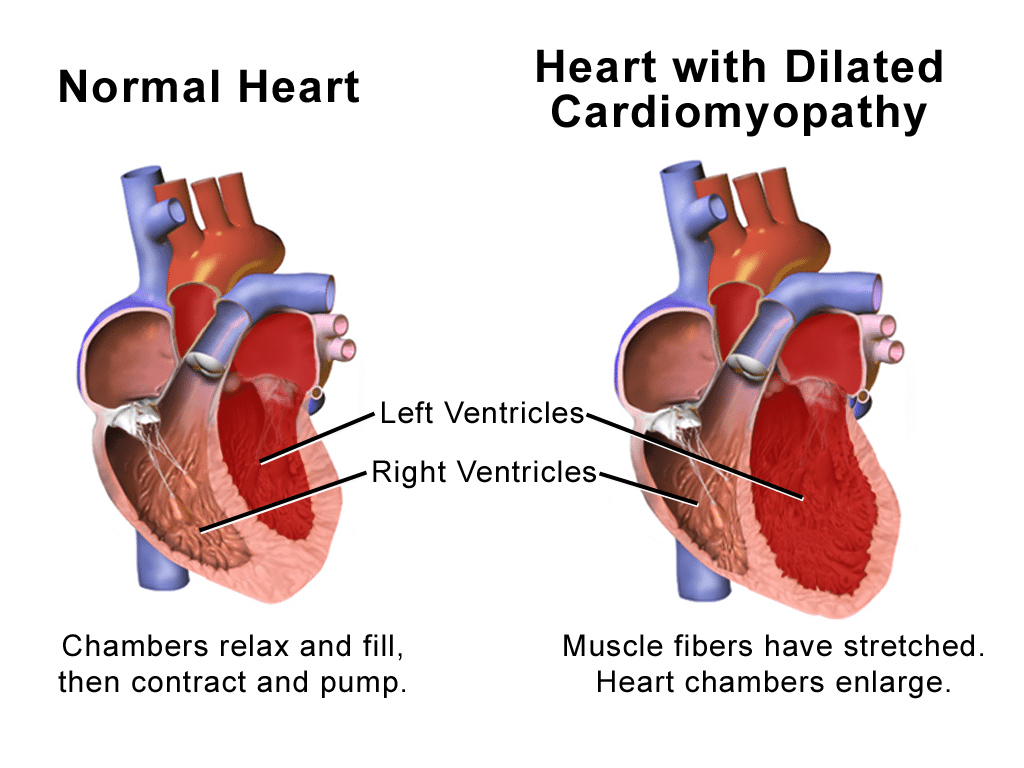 Illustration of a Normal Heart vs. Heart with Dilated Cardiomyopathy