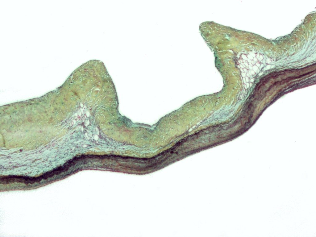 Micrograph demonstrating myxomatous degeneration of the aortic valve, a common manifestation of Marfan syndrome